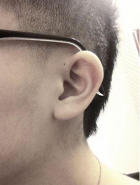 rupica uho 2
