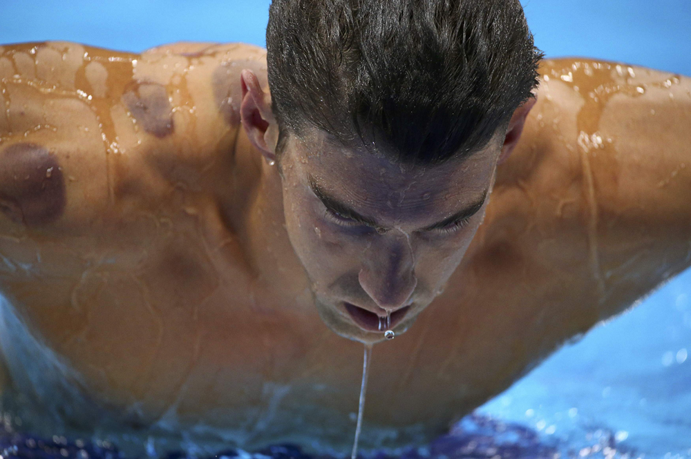 2016 Rio Olympics - Swimming - Preliminary - Men's 200m Butterfly - Heats - Olympic Aquatics Stadium - Rio de Janeiro, Brazil - 08/08/2016. Michael Phelps (USA) of USA is seen with red cupping marks on his shoulder as he competes.  REUTERS/Michael Dalder  FOR EDITORIAL USE ONLY. NOT FOR SALE FOR MARKETING OR ADVERTISING CAMPAIGNS.