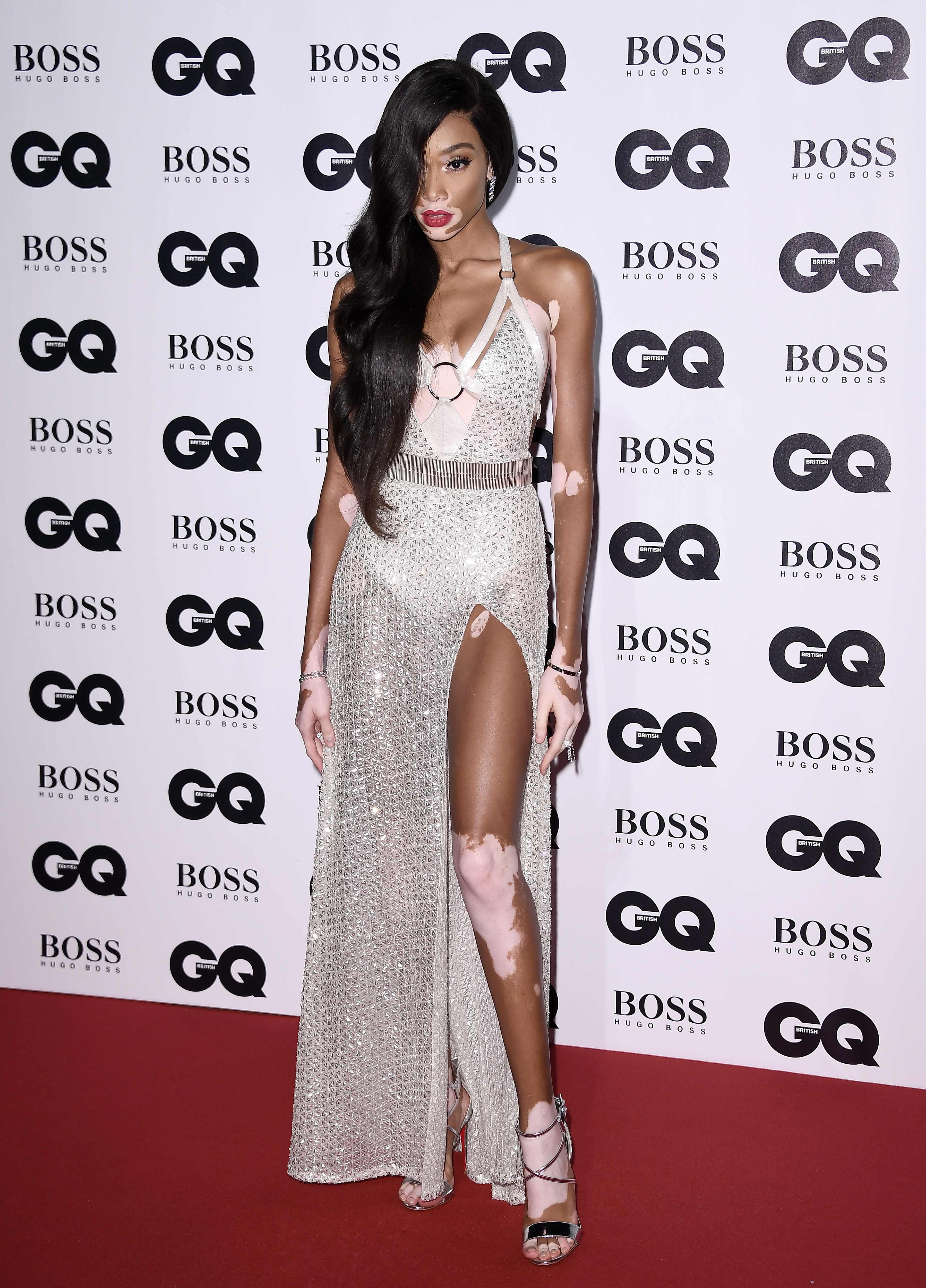 LONDON, ENGLAND - SEPTEMBER 05:  Winnie Harlow attends the GQ Men Of The Year Awards at the Tate Modern on September 5, 2017 in London, England.  (Photo by Gareth Cattermole/Getty Images)