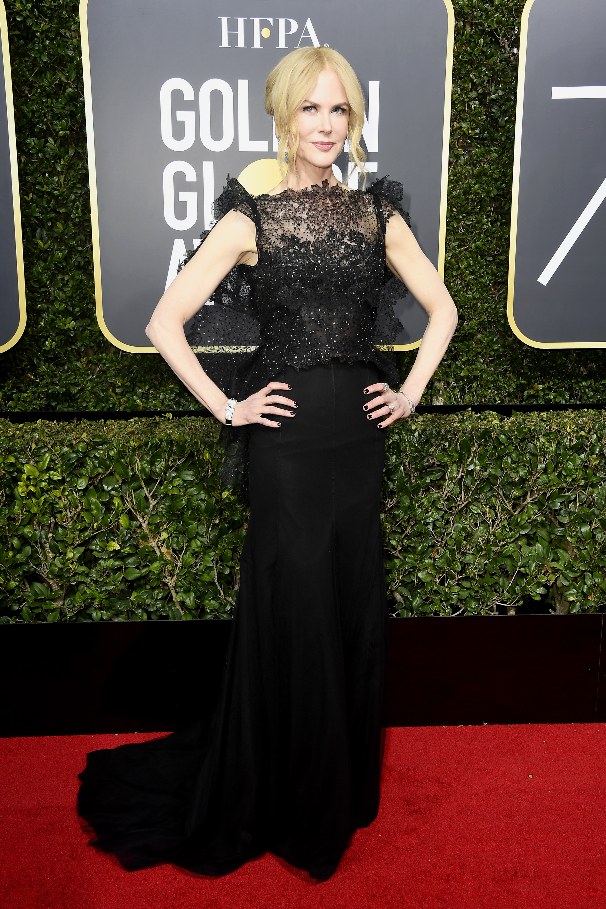 BEVERLY HILLS, CA - JANUARY 07:  Actor Nicole Kidman attends The 75th Annual Golden Globe Awards at The Beverly Hilton Hotel on January 7, 2018 in Beverly Hills, California.  (Photo by Frazer Harrison/Getty Images)