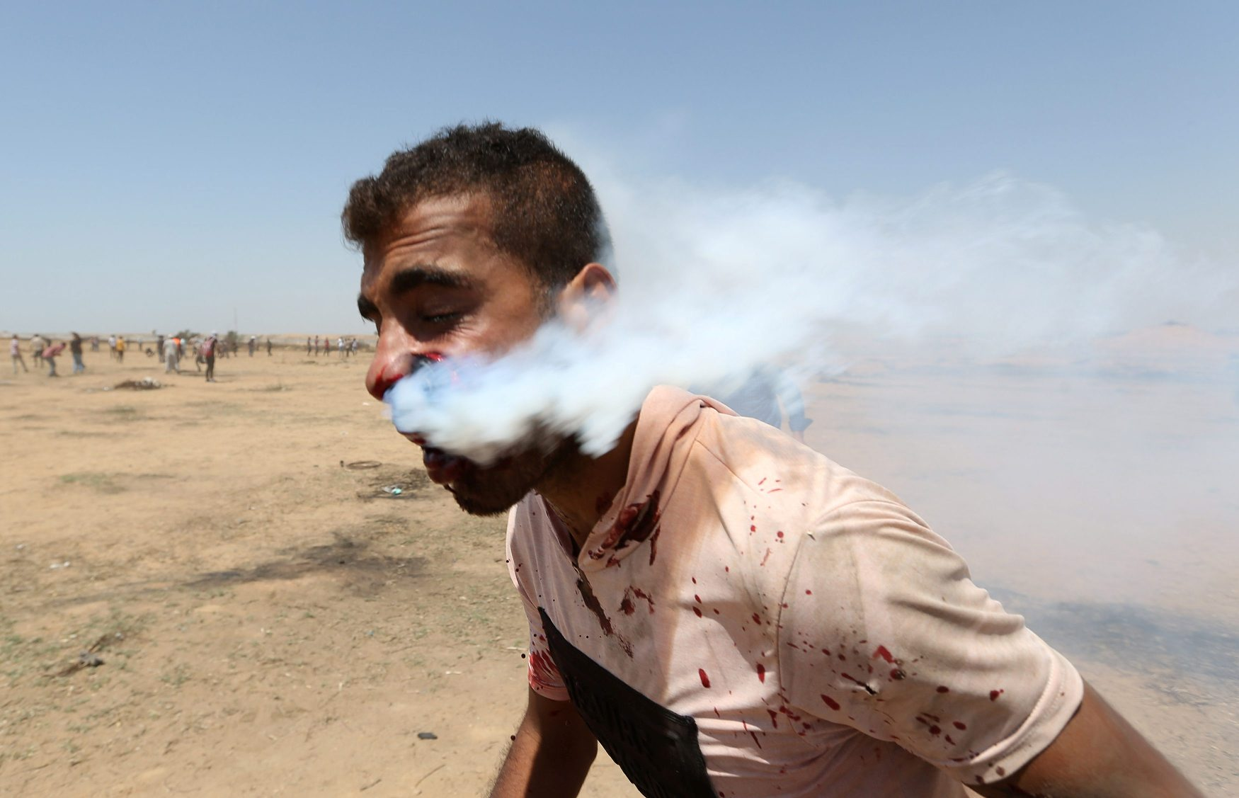 ATTENTION EDITORS - VISUAL COVERAGE OF SCENES OF INJURY OR DEATH A wounded Palestinian demonstrator is hit in the face with a tear gas canister fired by Israeli troops during a protest marking al-Quds Day, (Jerusalem Day), at the Israel-Gaza border in the southern Gaza Strip June 8, 2018. REUTERS/Ibraheem Abu Mustafa   TEMPLATE OUT