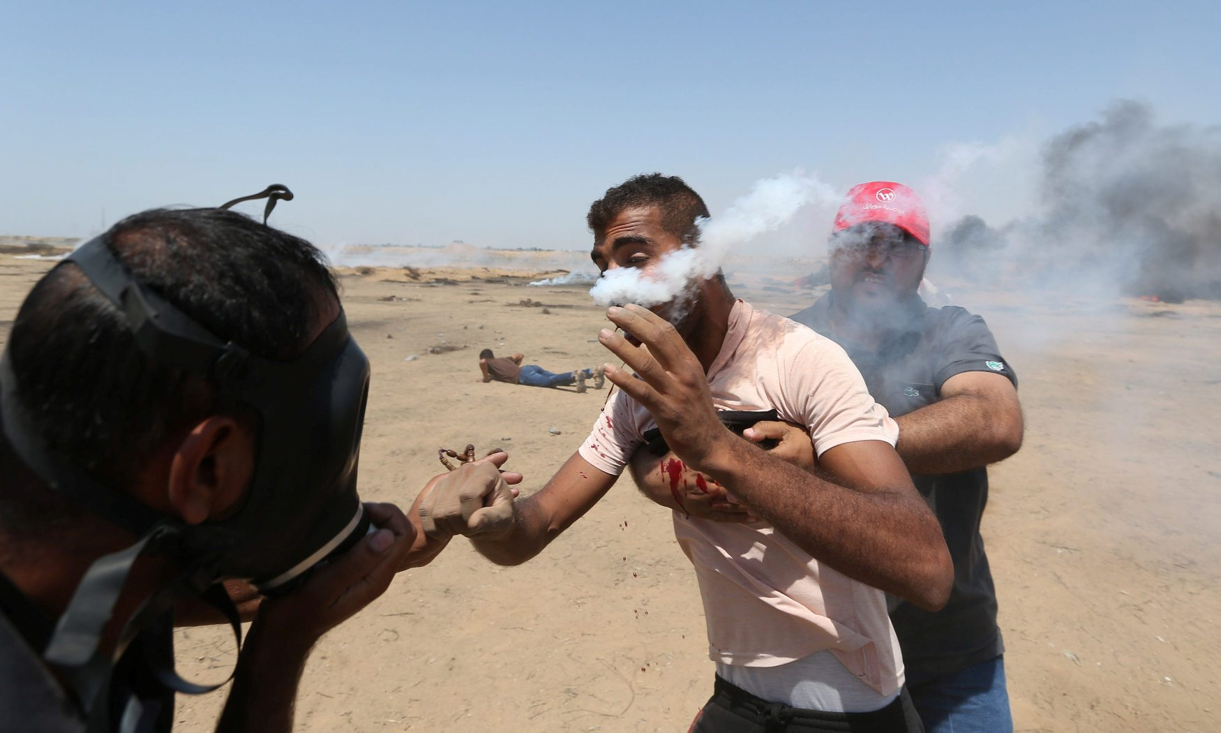 ATTENTION EDITORS - VISUAL COVERAGE OF SCENES OF INJURY OR DEATH A wounded Palestinian demonstrator reacts as he is hit in the face with a tear gas canister fired by Israeli troops during a protest marking al-Quds Day, (Jerusalem Day), at the Israel-Gaza border in the southern Gaza Strip June 8, 2018. REUTERS/Ibraheem Abu Mustafa