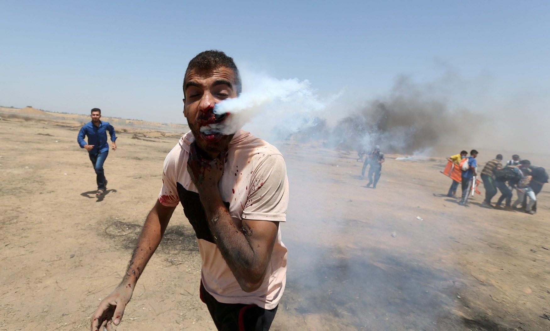 ATTENTION EDITORS - VISUAL COVERAGE OF SCENES OF INJURY OR DEATH A wounded Palestinian demonstrator reacts as he is hit in the face with a tear gas canister fired by Israeli troops during a protest marking al-Quds Day, (Jerusalem Day), at the Israel-Gaza border in the southern Gaza Strip June 8, 2018. REUTERS/Ibraheem Abu Mustafa TEMPLATE OUT     TPX IMAGES OF THE DAY