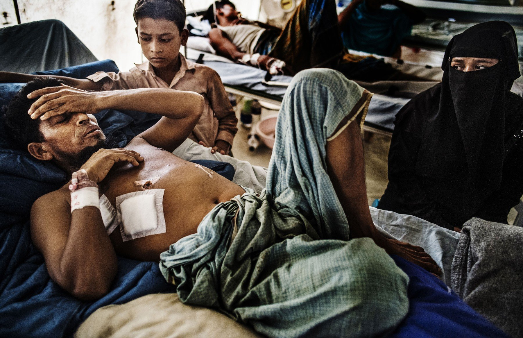 June 8, 2018 - Cox'S Bazar, Cox's Bazar, Bangladesh - At the Red Cross field hospital in Kutupalong, .Rohingya Anowar Sadek,10, visited his father Kamal Hossain,37, who had a leg amputated in a traffic accident when he was run over by a wood loaded truck. The influx of more than 700,000 refugees since last August has made living in refugee camps a daily struggle for survival. The field hospital is the only 24-hour facility within an hour's drive and has seen 25,000 patients since it opened last fall. On June 8, 2018 preparations are being made in anticipation of the heavy rains in the Rohingya refugee camps south of Cox's Bazar., Image: 374266793, License: Rights-managed, Restrictions: , Model Release: no, Credit line: Profimedia, Zuma Press - News