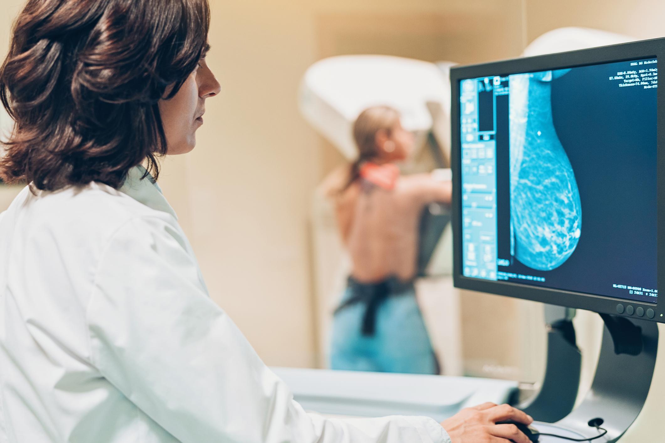 Iako se smrtnost od raka dojke smanjuje, brojka od 2735 novooboljelih žena još uvijek je izrazito visoka za našu malu populaciju.