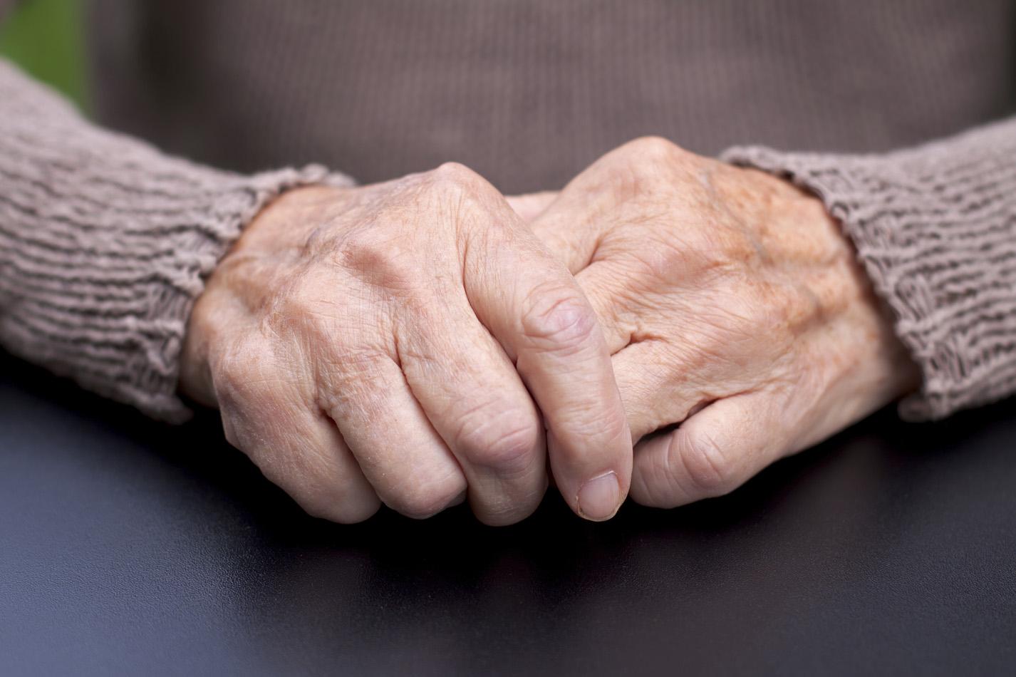 Reumatoidni artritis nije nužno vezan za stariju populaciju. Naime, može se javiti već u tridesetima