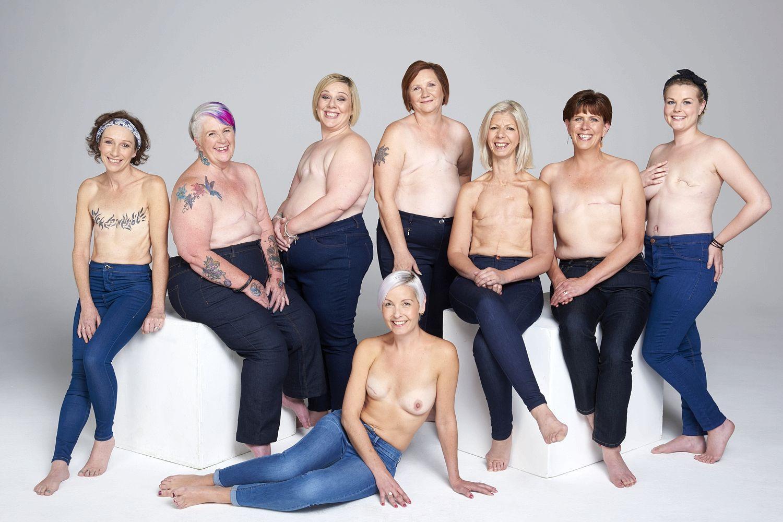 Mnoge žene koje se suoče s dijagnozom - karcinom dojke, u nekom se trenutku suoče i s viješću da će im dojka ili čak obje biti odstranjene. Ova metoda to bi mogla promijeniti.