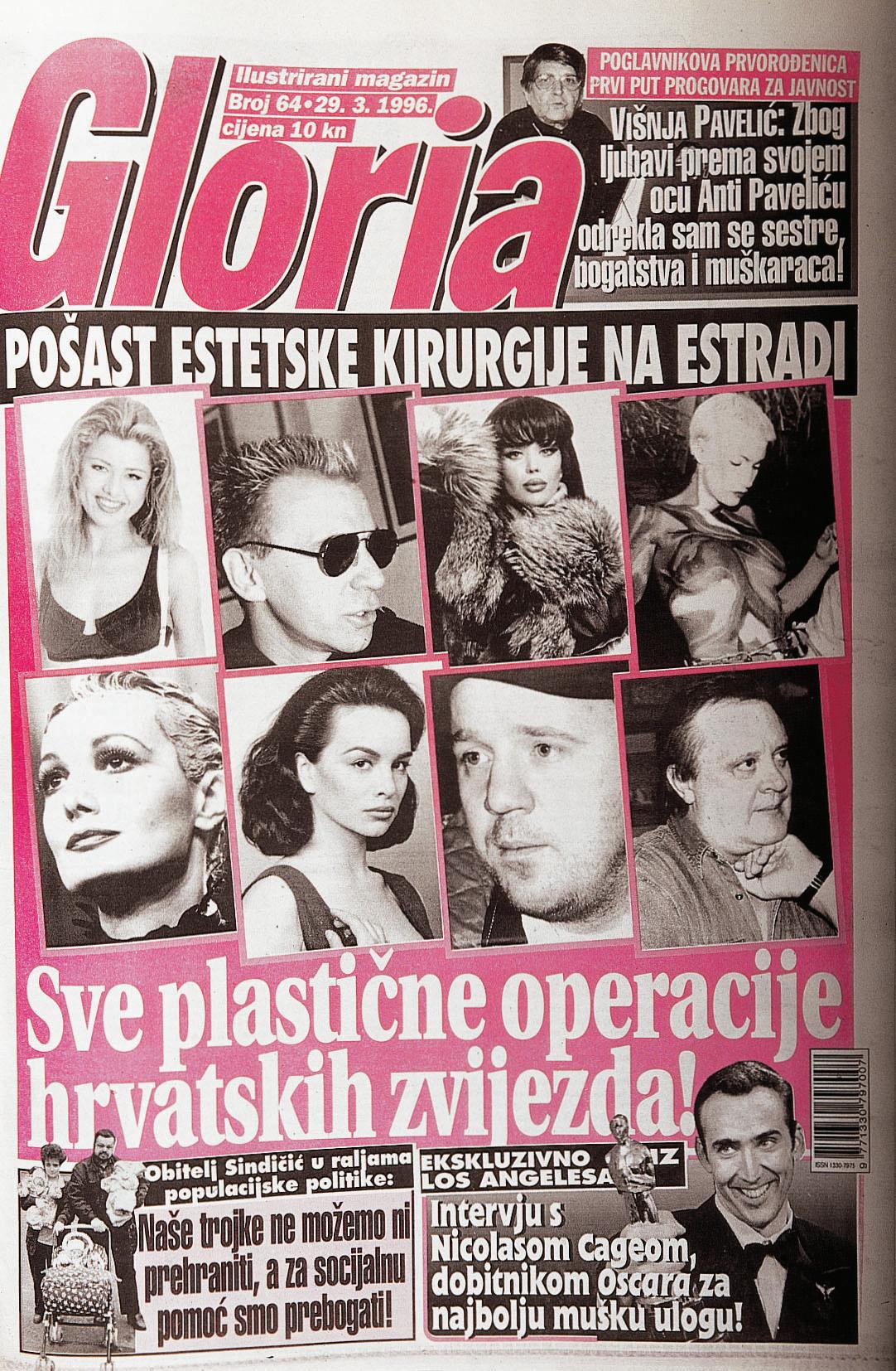 Tema o kojoj se tada nije mnogo pisalo - plastične operacije hrvatskih zvijezda
