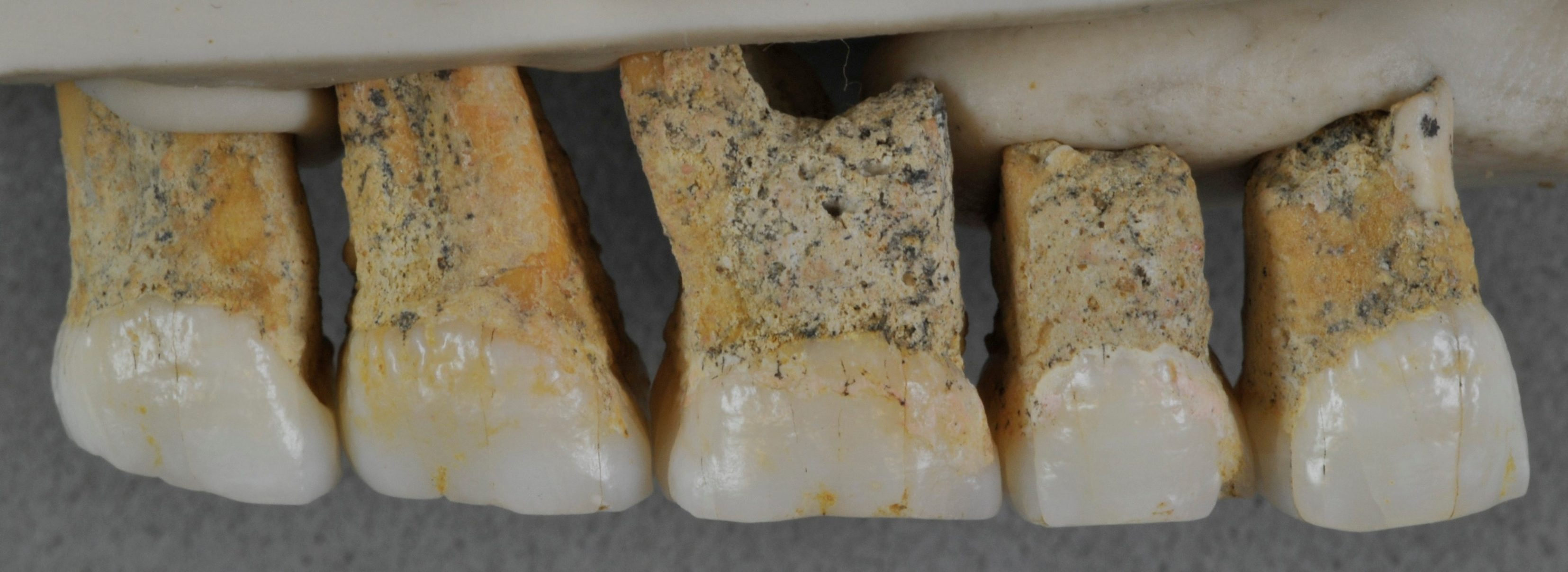 Right upper teeth of an individual of the newly identified species Homo luzonensis, found in Callao Cave on Luzon Island, the Philippines, are seen in this undated handout photo obtained by Reuters April 10, 2019. Callao Cave Archaeology Project/Handout via REUTERS    ATTENTION EDITORS - THIS IMAGE WAS PROVIDED BY A THIRD PARTY. NO RESALES. NO ARCHIVE.