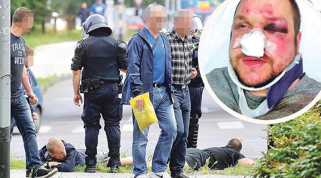 Zbog vještačenja tragova policija je uhićenim navijačima izuzela odjeću i obuću