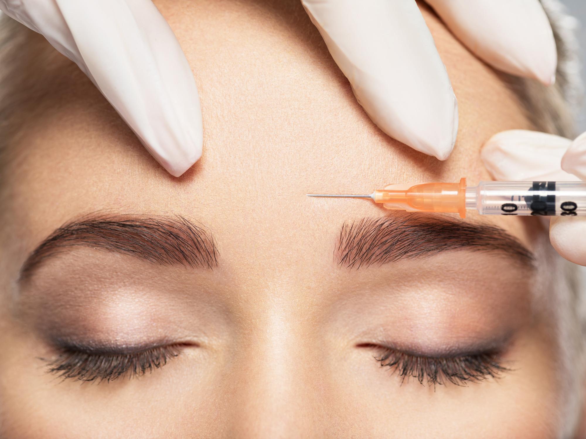Mezoterapija ima trostruki učinak jer se višestrukim ubodima igle ostvaruje mehanička stimulacija kože.