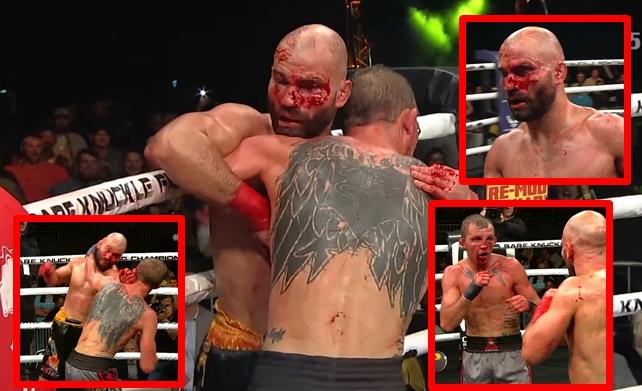 Artem Lobov vs Jason Knight BKFC 5