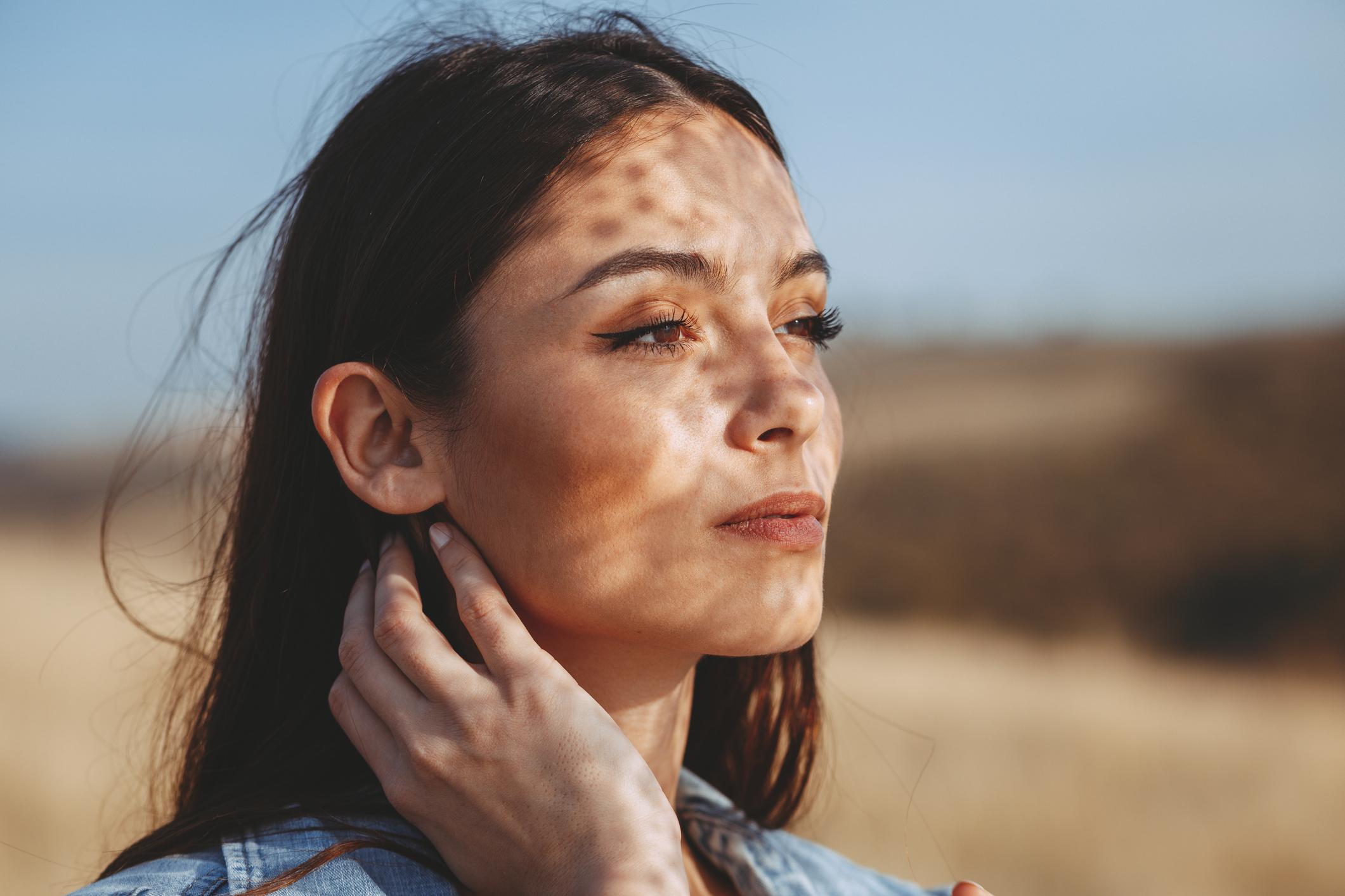 Devet od 10 osoba kojima je dijagnosticiran lupus su žene u dobi od 15 do 44 godine.