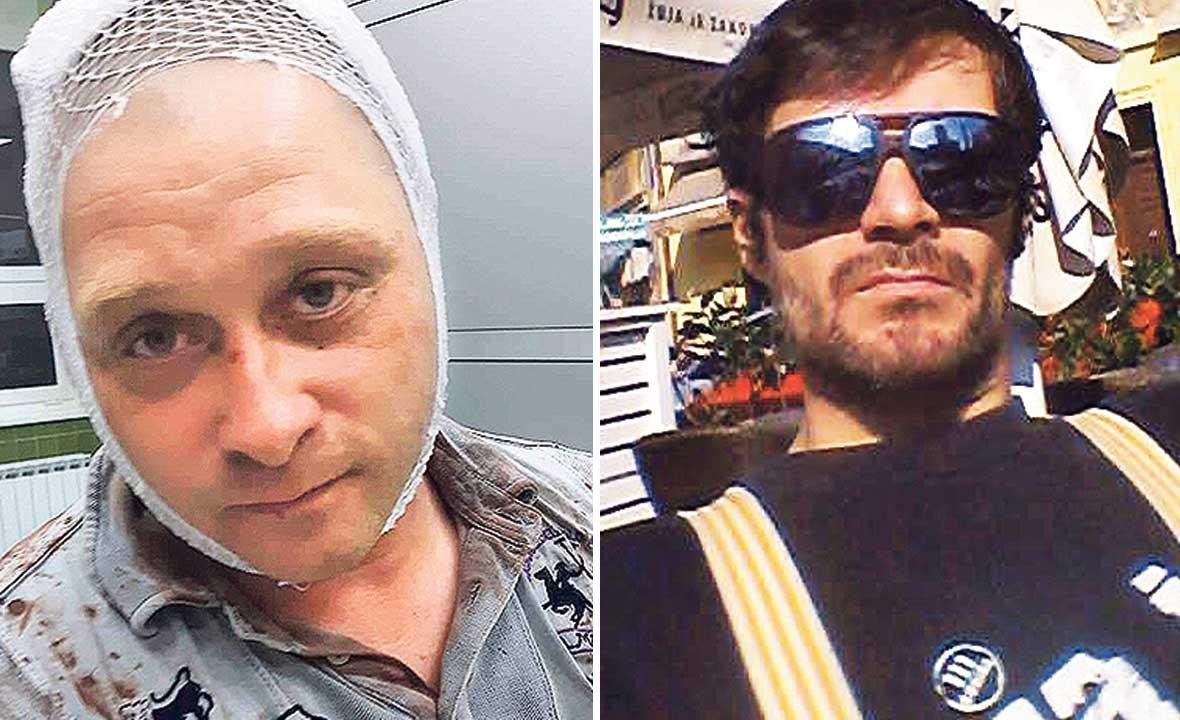 Napadnuti Richard Presečan (lijevo), Dušan Ožegović (desno)