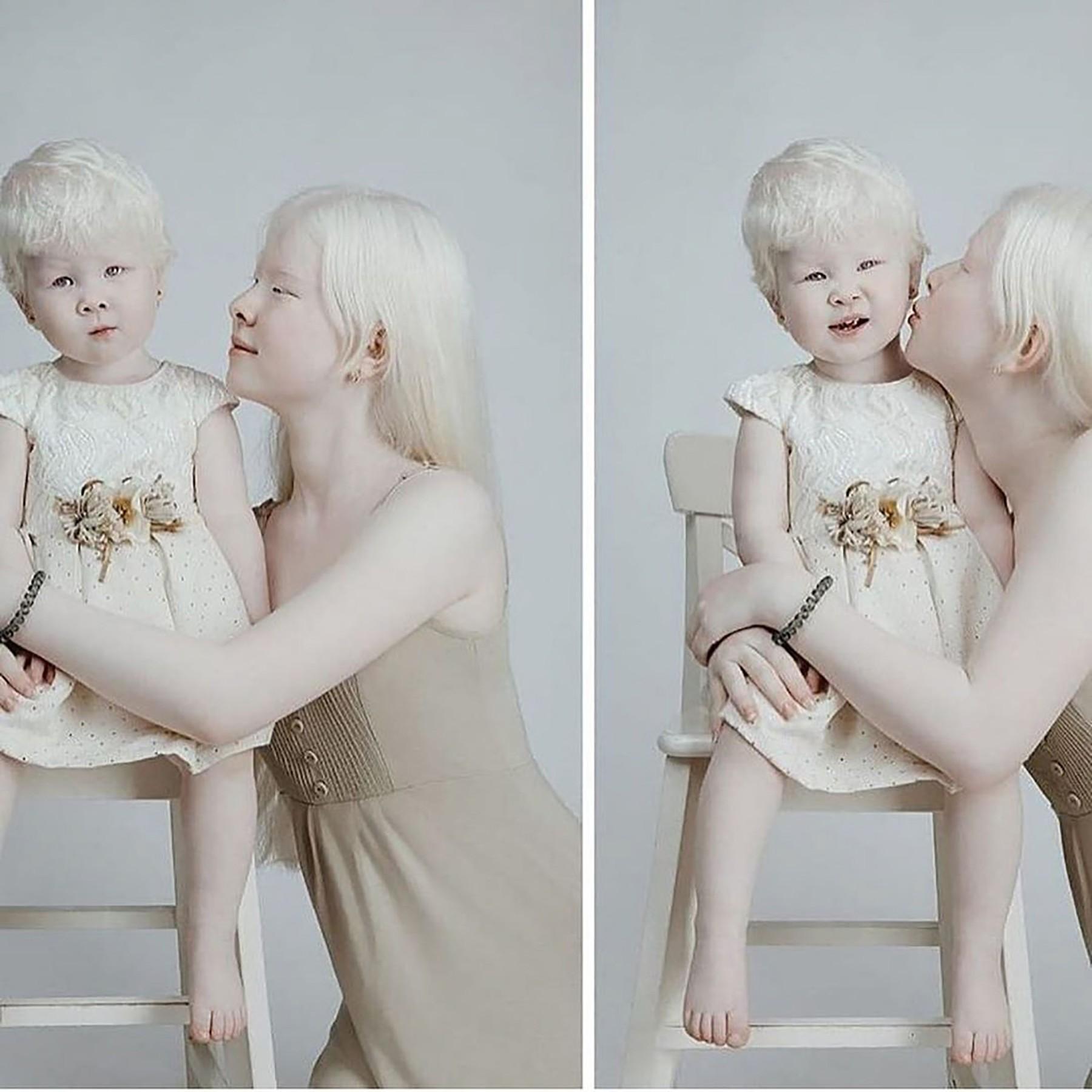 albino girls1