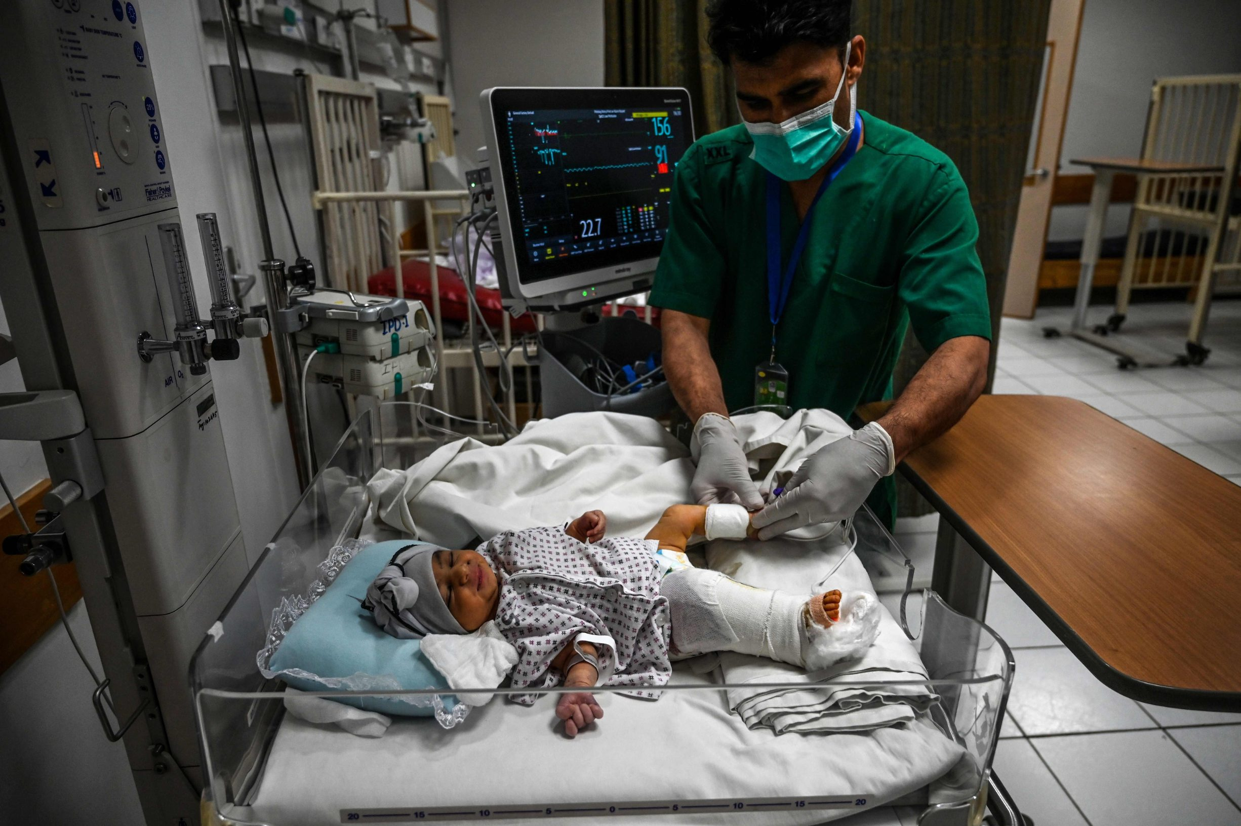 A newborn baby, Bibi Amena, receives treatment for the gun wound in her right leg as she has been rescued and brought to the French Medical Institute for Children after losing her mother during a gunmen attack on a maternity hospital, in Kabul on May 15, 2020. - Gunmen who stormed a hospital in the Afghan capital this week had come to
