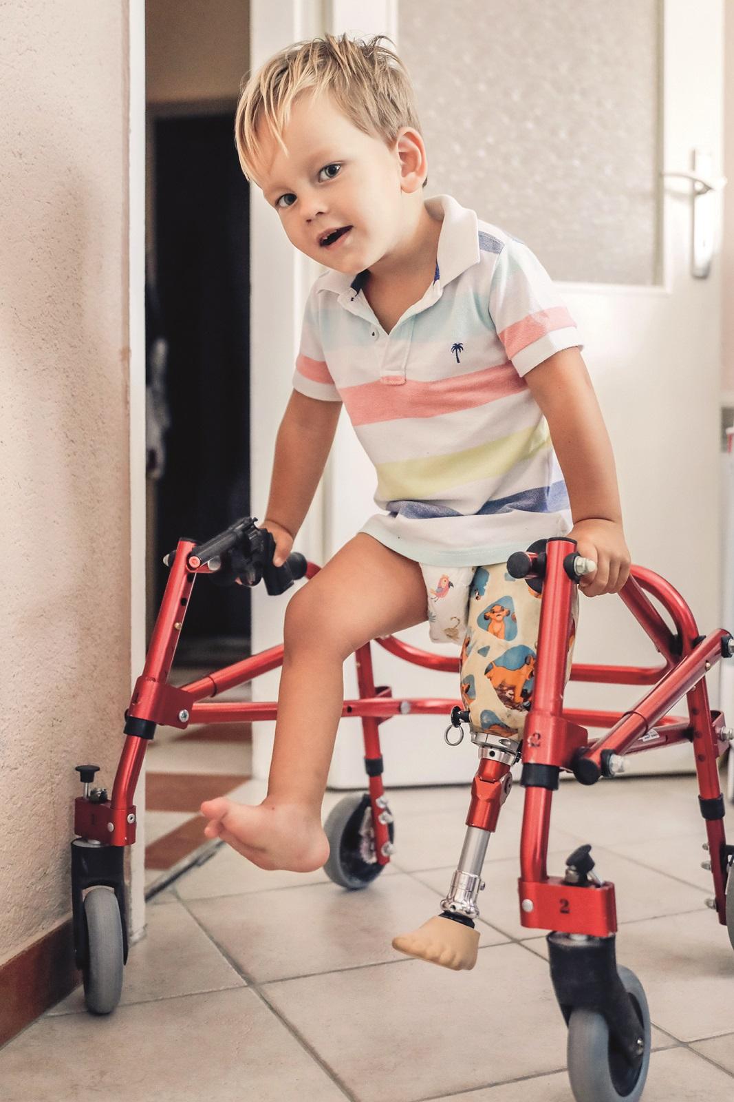 Zupanja, 060720 Simun clan obitelji Stojanovic se susrece s problemom prijave u vrtic zbog proteze lijeve noge. Na fotografiji mali Simun Stojanovic. Foto: Danijel Soldo / CROPIX SPECIJAL GLORIJA