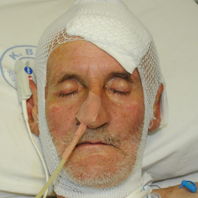 Nepoznati muškarac koji je u lipnju s ozljedom glave pronađen u mjestu Kalinovica