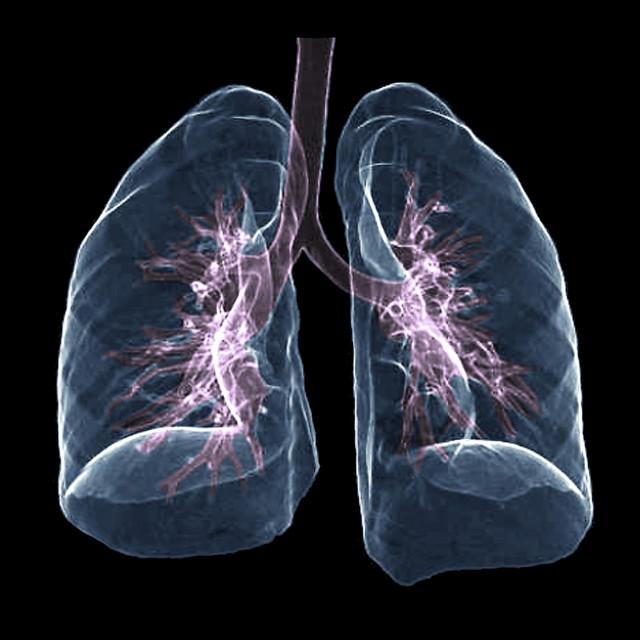 Zdrava pluća