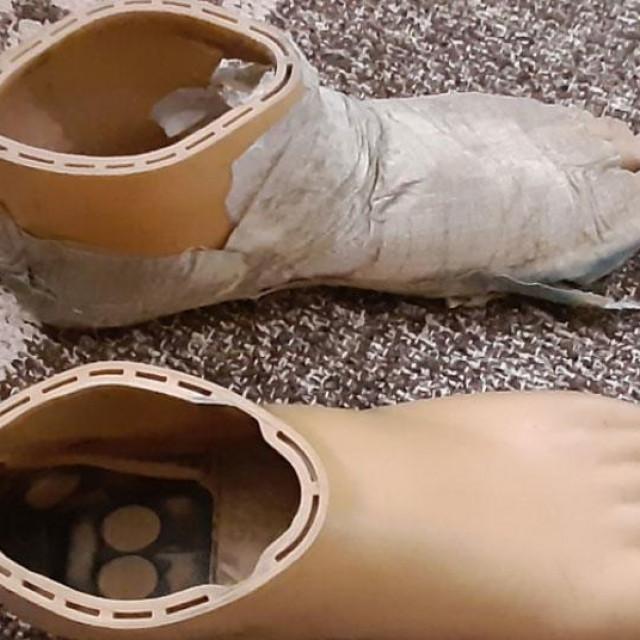 Proteza je stigla u paketu iz Hrvatske