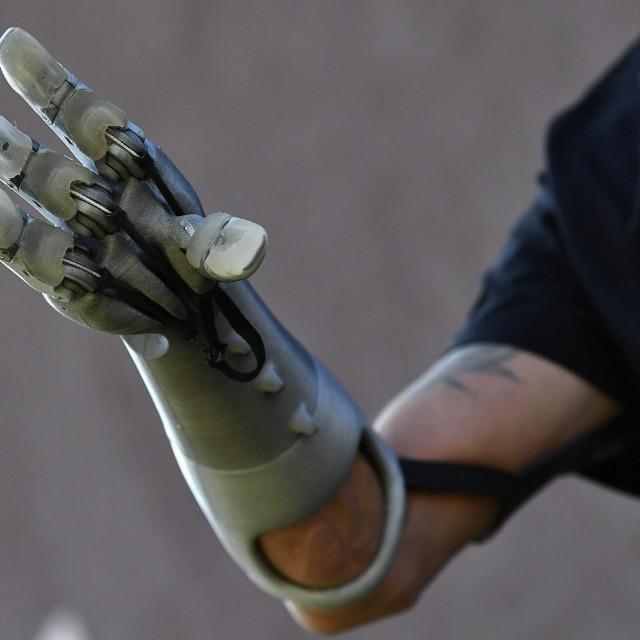 Krunoslav Mihić i njegova mehanička ruka