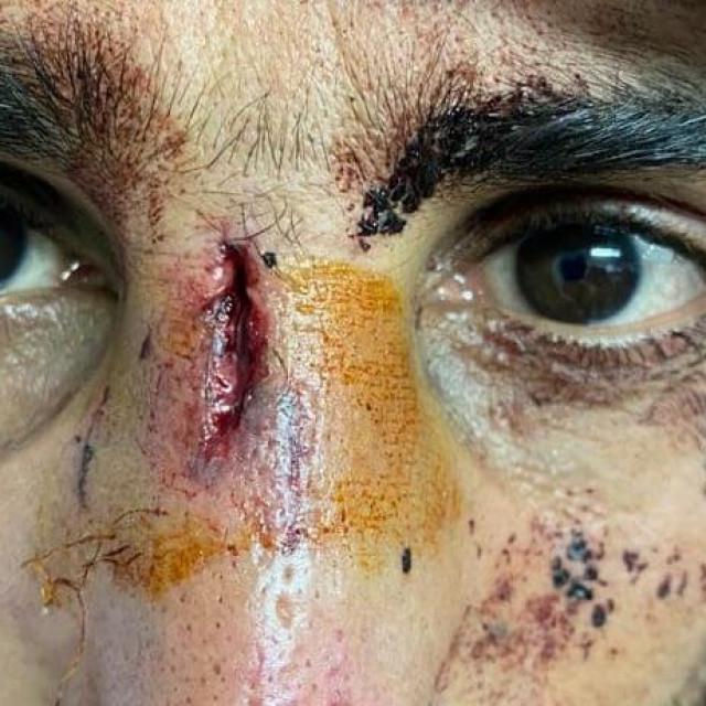 Azilant koji tvrdi da ga je napala Hrvatska policija