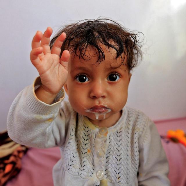 Dijete u Jemenu