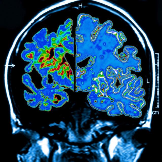 Alzheimerova bolest, Ilustracija