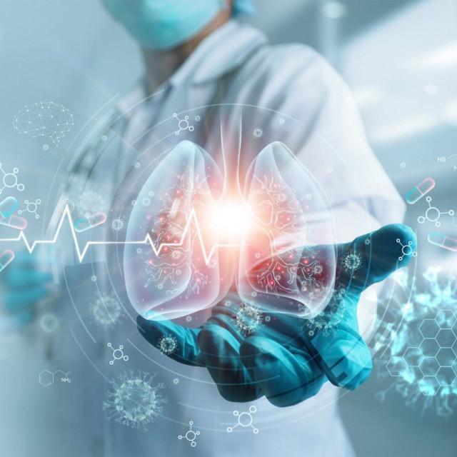 Obilježavanje Svjetskog dana raka pluća