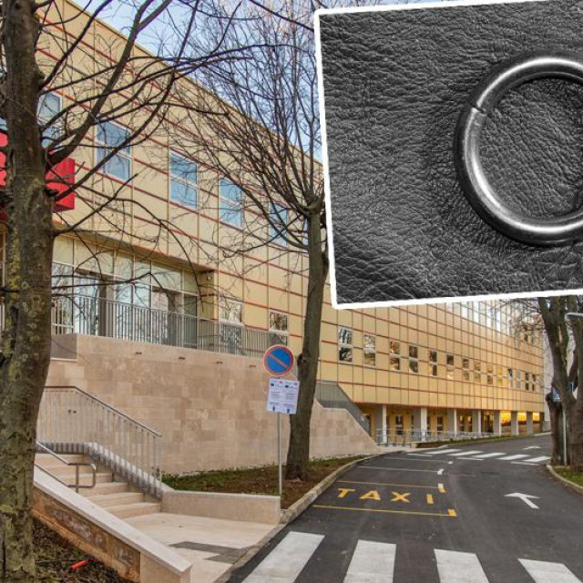 Opća bolnica u Puli; u pravokutniku: ilustracija prstena