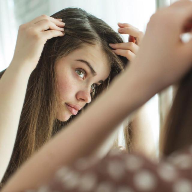 Način ispadanja kose razlikuje se po kliničkom tijeku, vrsti liječenja i prognozi